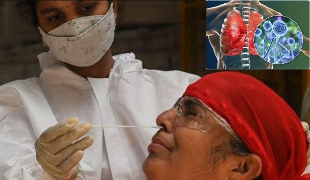 El hongo negro que afecta a India es mortal para los diabéticos